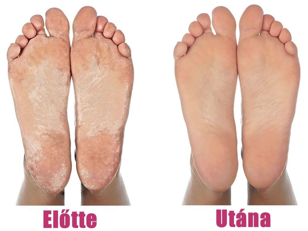 bőrproblémák lábon)