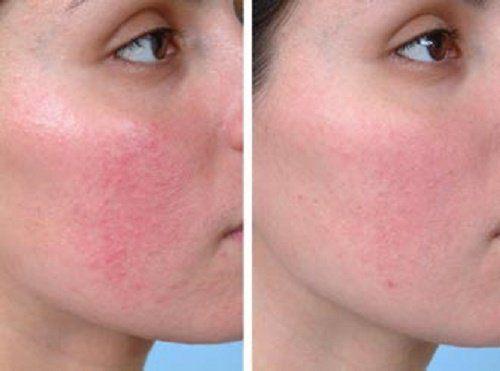 hogyan lehet gyorsan eltávolítani egy vörös foltot az arcon